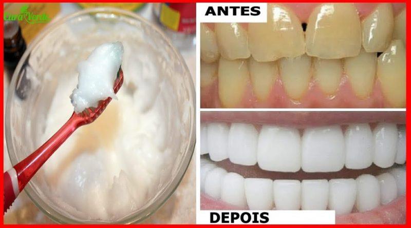 Bastam 2 Minutos Para Clarear Os Dentes Acabar Com Trtaro
