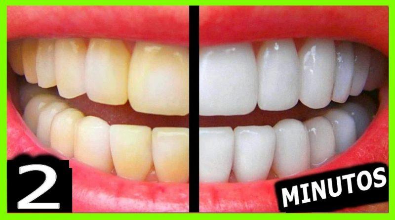 Como Clarear Os Dentes Na Hora Eliminar Tartaro E Gengivite Em 2