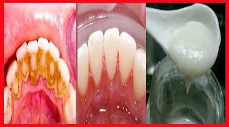 Como Tirar Tartaro Dos Dentes E Clarear Os Dentes Em 3 Minutos